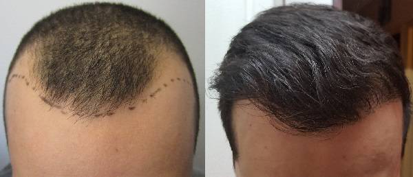 NON-Surgical Hair Transplantation